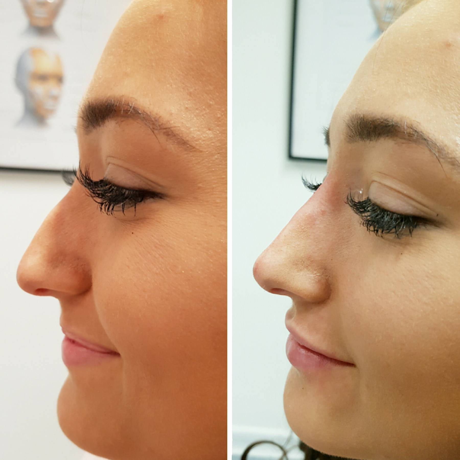 Non Surgical Nose Job Everything You Need To Know Glamour Uk