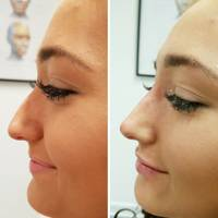 Best Places To Get A Nose Job In The UK | Glamour UK