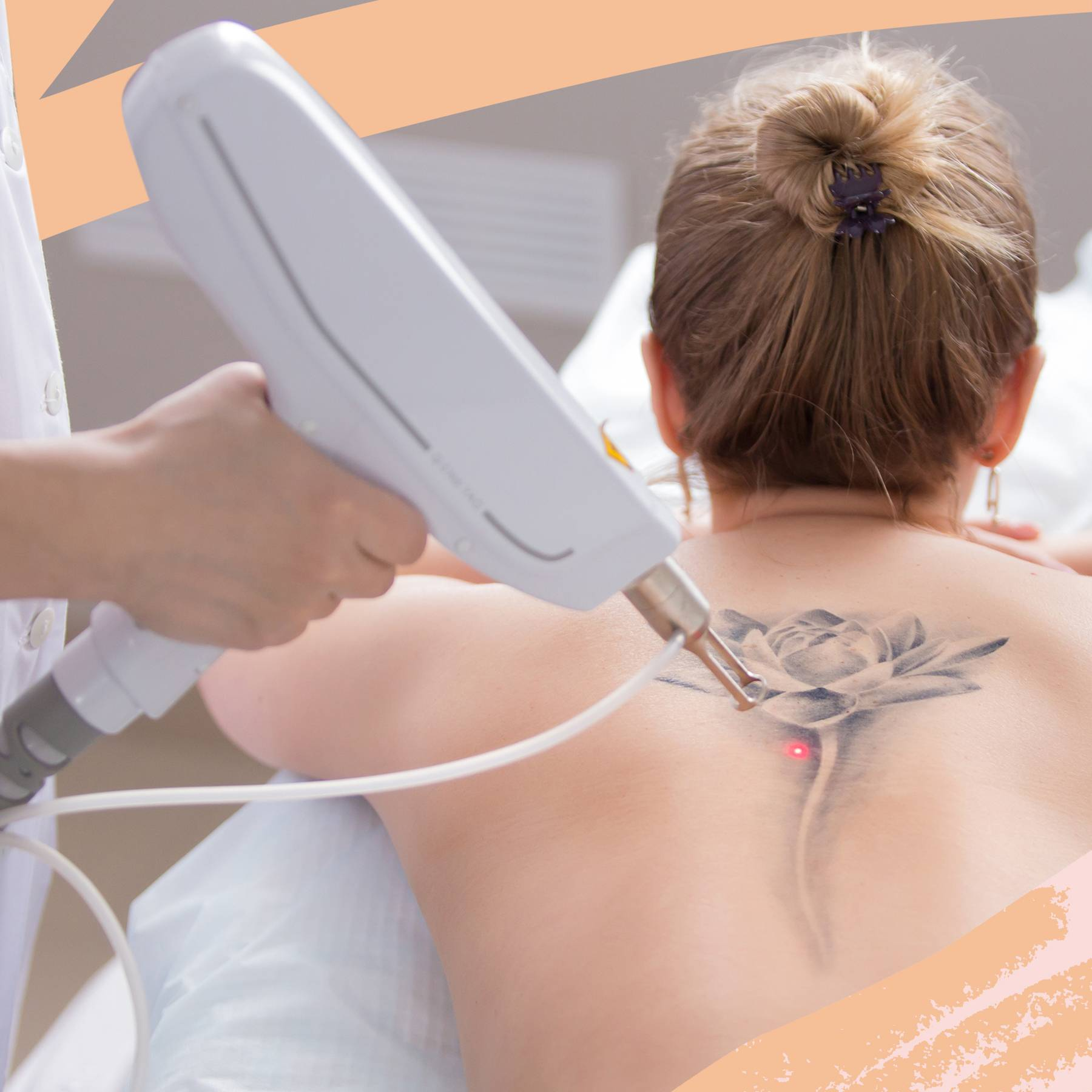 Tattoo Removal Options For How To Remove A Tattoo Glamour Uk