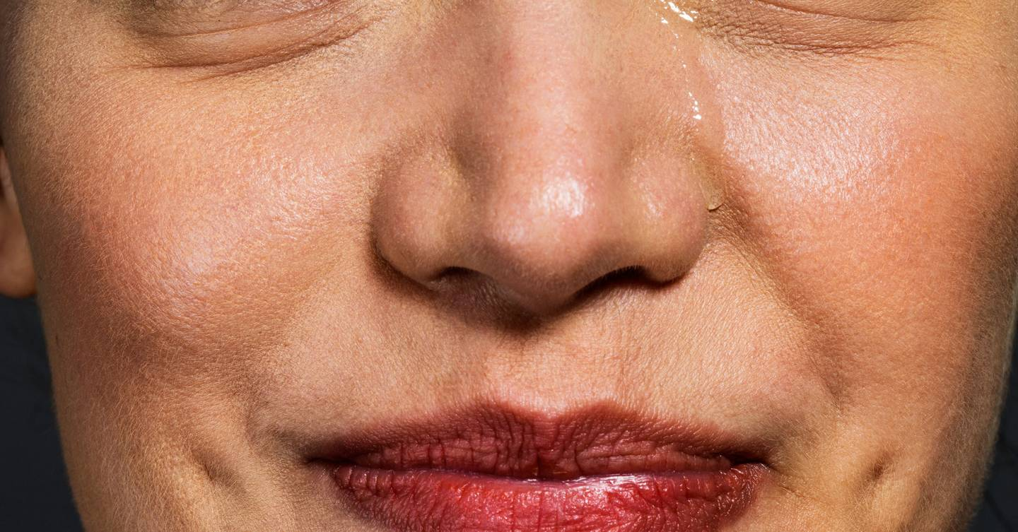 Can crying all the time make your skin break out?