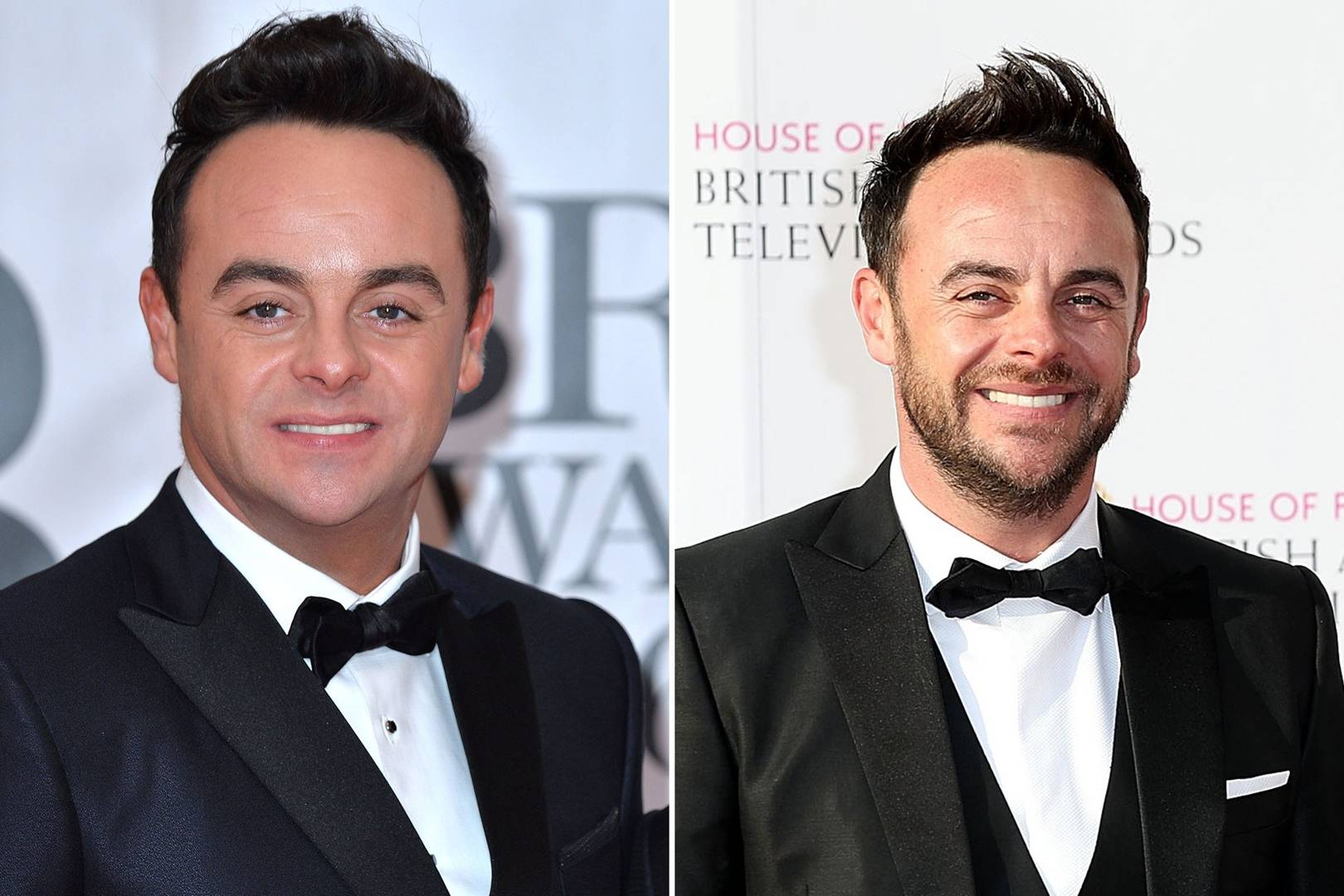Ant Mcpartlin Beard His Sexy Makeover In Pictures Glamour Uk