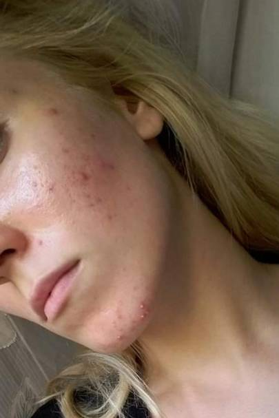This woman's before and after acne picture is going viral, here's how she cleared her skin...