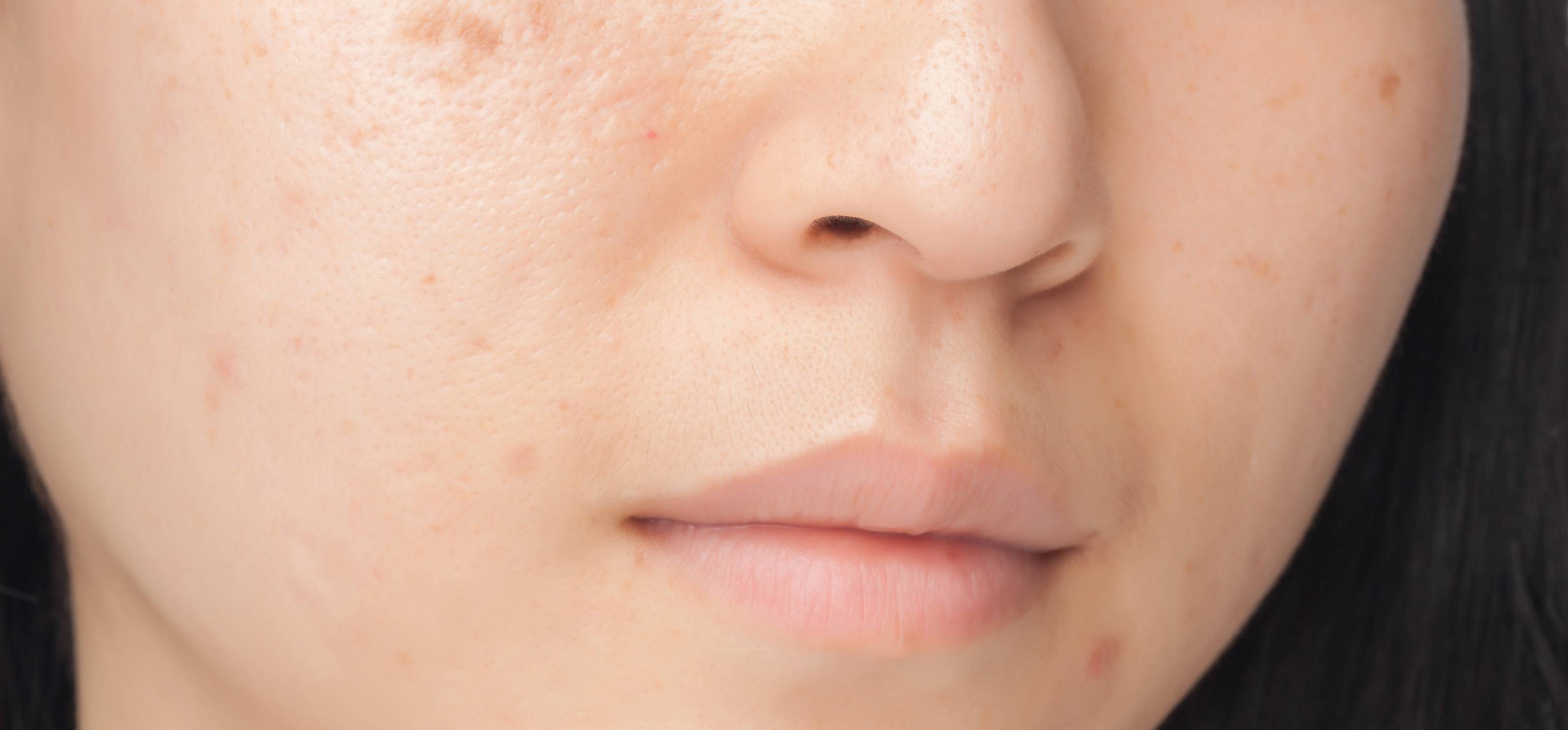 How To Get Rid Of Acne Scars: Expert Advice, Preventatives