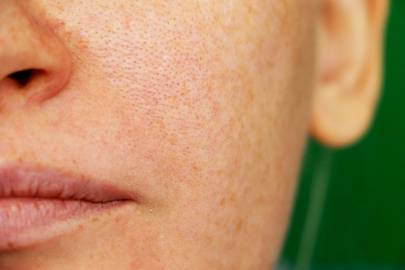 How To Minimise Pores: The Tips And Products To Shrink Your