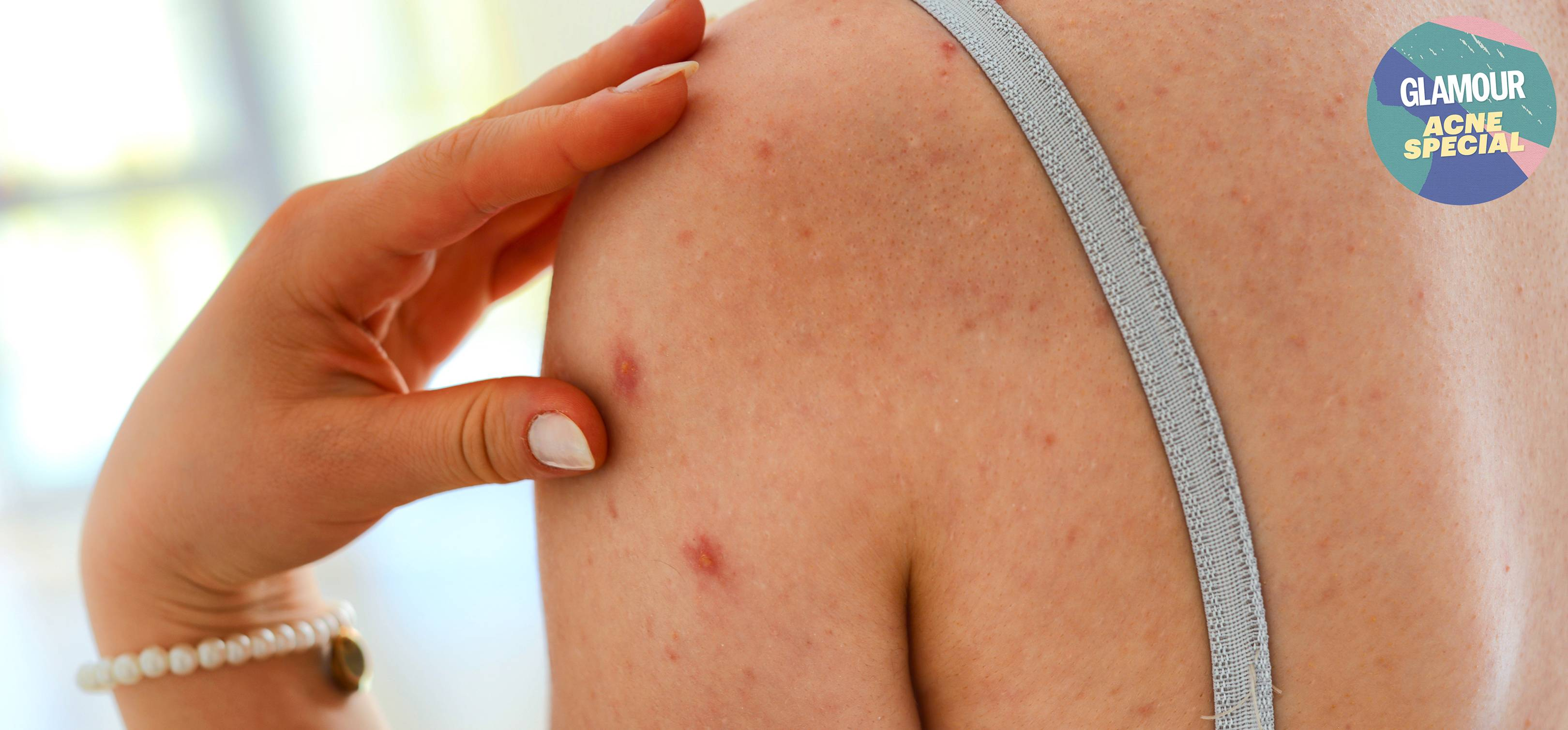 Fungal Acne Treatment And How To Tell If You Have It Glamour Uk
