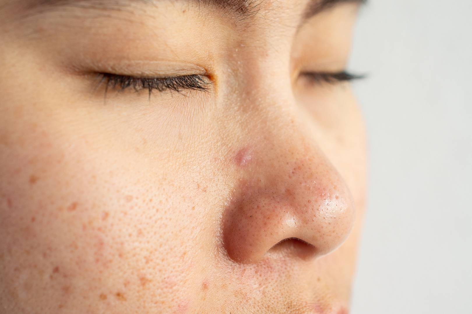 Nose Acne A Top Dermatologist Answers Your Questions Glamour Uk