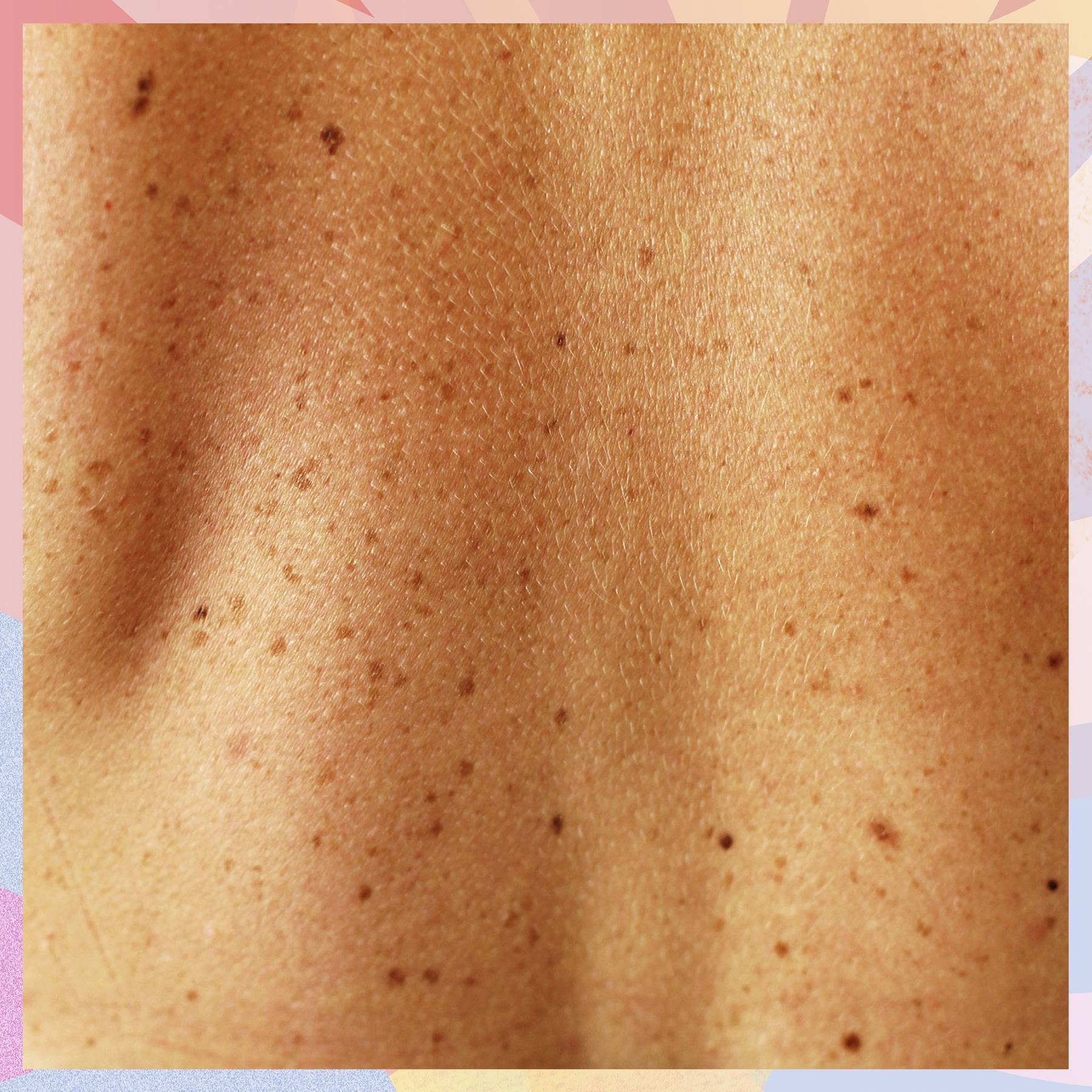 The ultimate guide to moles (and how to figure out which ones need checking out)