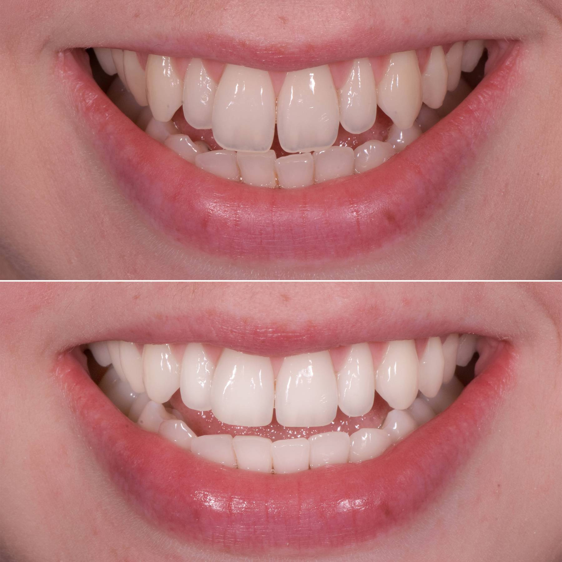 Tooth Contouring How Cosmetic Teeth Reshaping Works And The After